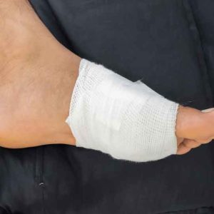 Foot with a wound or an ulcer covered with bandage