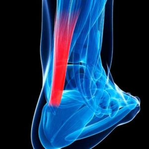 Achilles tendon injury concept demonstrates common area and source of pain