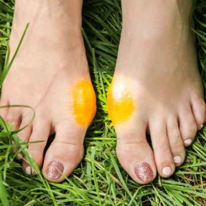 Two feet on grass with bunions on each treatable by foot doctor