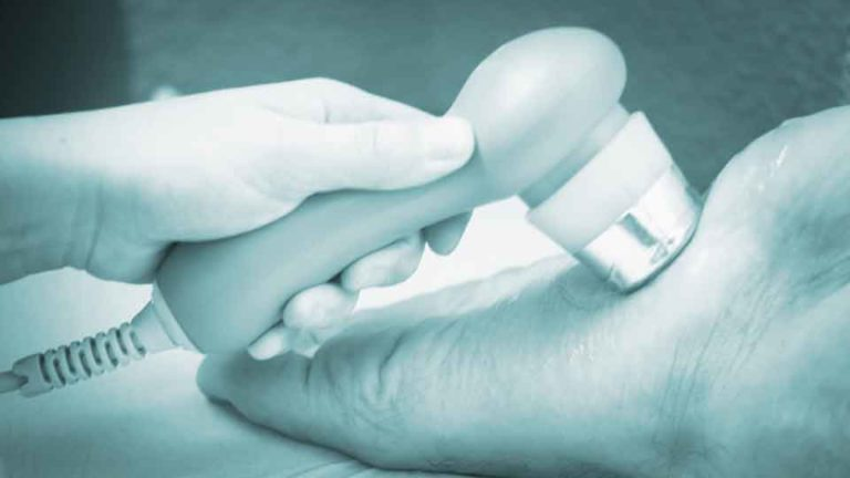 Ectracorporeal Shockwave Therapy for Heel Pain