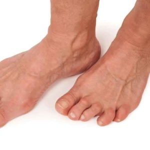 Two feet showing signs of foot arthritis